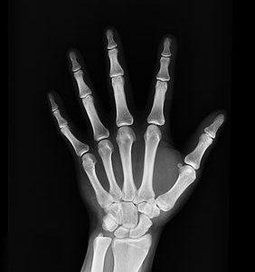 Materiał imitujący ludzką kość będzie ratunkiem dla osób zagrożonych amputacją