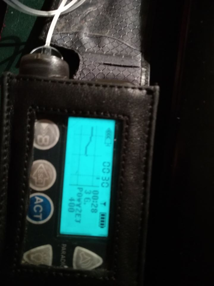 pompa insulinowa